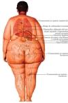 obesidad.TUMOR